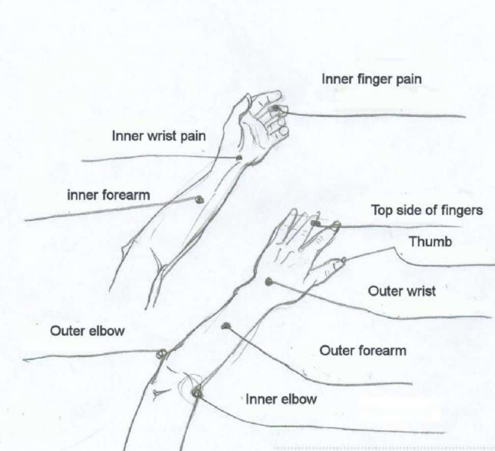 Elbow, arm, wrist, hand pain 65 PDF created with pdfFactory Pro trial version www.pdffactory.com
