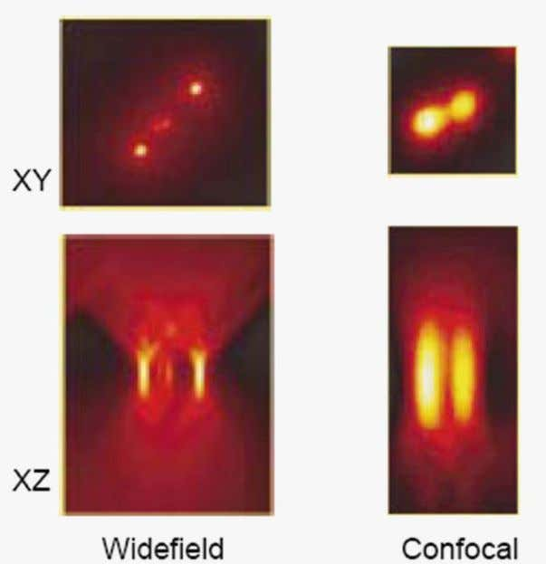 Widefield = hourglass shape Confocal = American Football shape Dr. Arne Seitz PT-BIOP course, Image Processing,