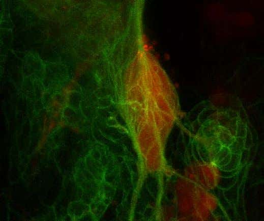 to Confocal pictures as they can also be deconvolved Dr. Arne Seitz PT-BIOP course, Image Processing,