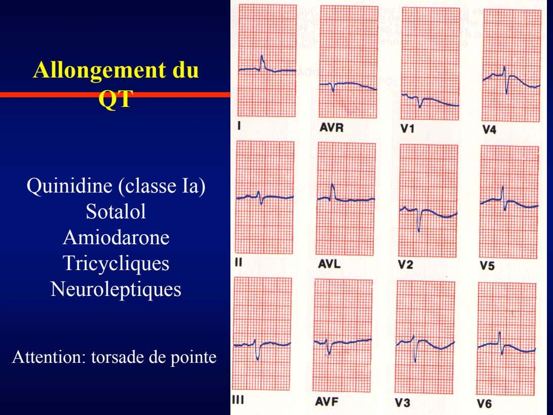 Allongement du QT Quinidine (classe Ia) Sotalol Amiodarone Tricycliques Neuroleptiques Attention: torsade de pointe