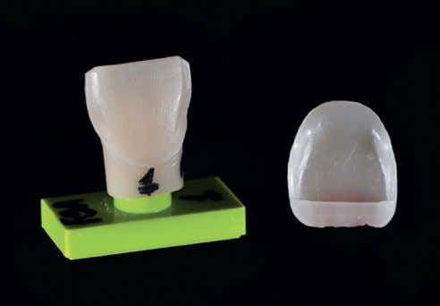 crowns and concluded that stress increases in thicker Figure 1. Standardized plastic maxillary central incisor