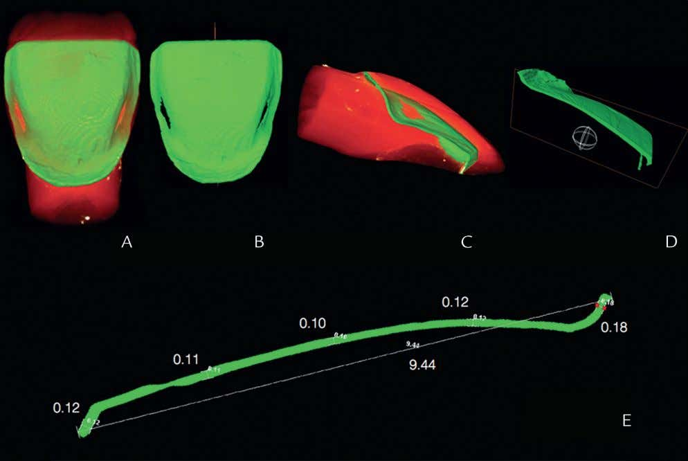 - 2016 5 Figure 4. Film thickness. Orange images show tooth with veneer cemented. Green images