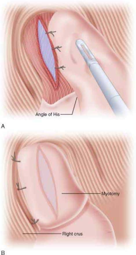 Figure 8-7 Step 4: Postoperative Care NPO till AM Swallow in AM Soft diet, home
