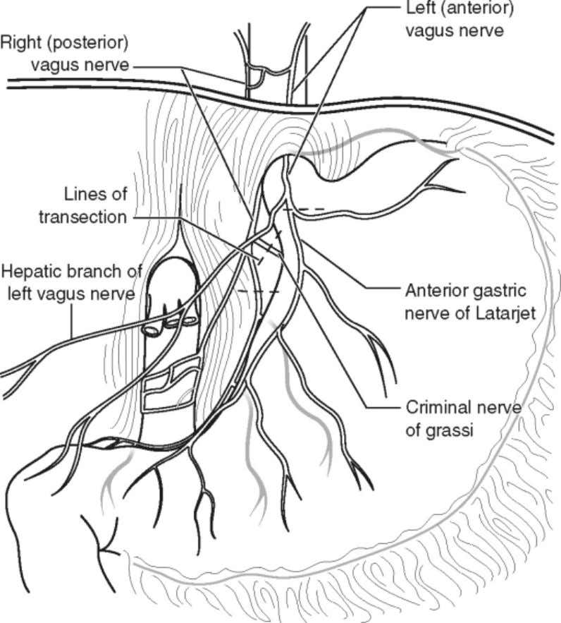 (posterior nerve of Latarjet) distal to the celiac branches. (Figure 10-1) Figure 10-1 Step 2: Preoperative