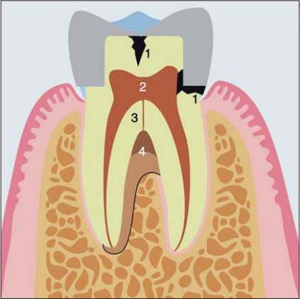 1 2 ). Schacher et al Periodontal-endodontic lesions Fig 2a Apical foramen and side canal as