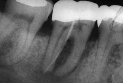 treatment. Schacher et al Periodontal-endodontic lesions Fig 6a Radiograph results before treatment (with gutta-