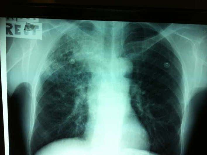 old lady with cough for 4 months. Weight loss of 6Kg. Chronic smoker Clinically crepitation noted