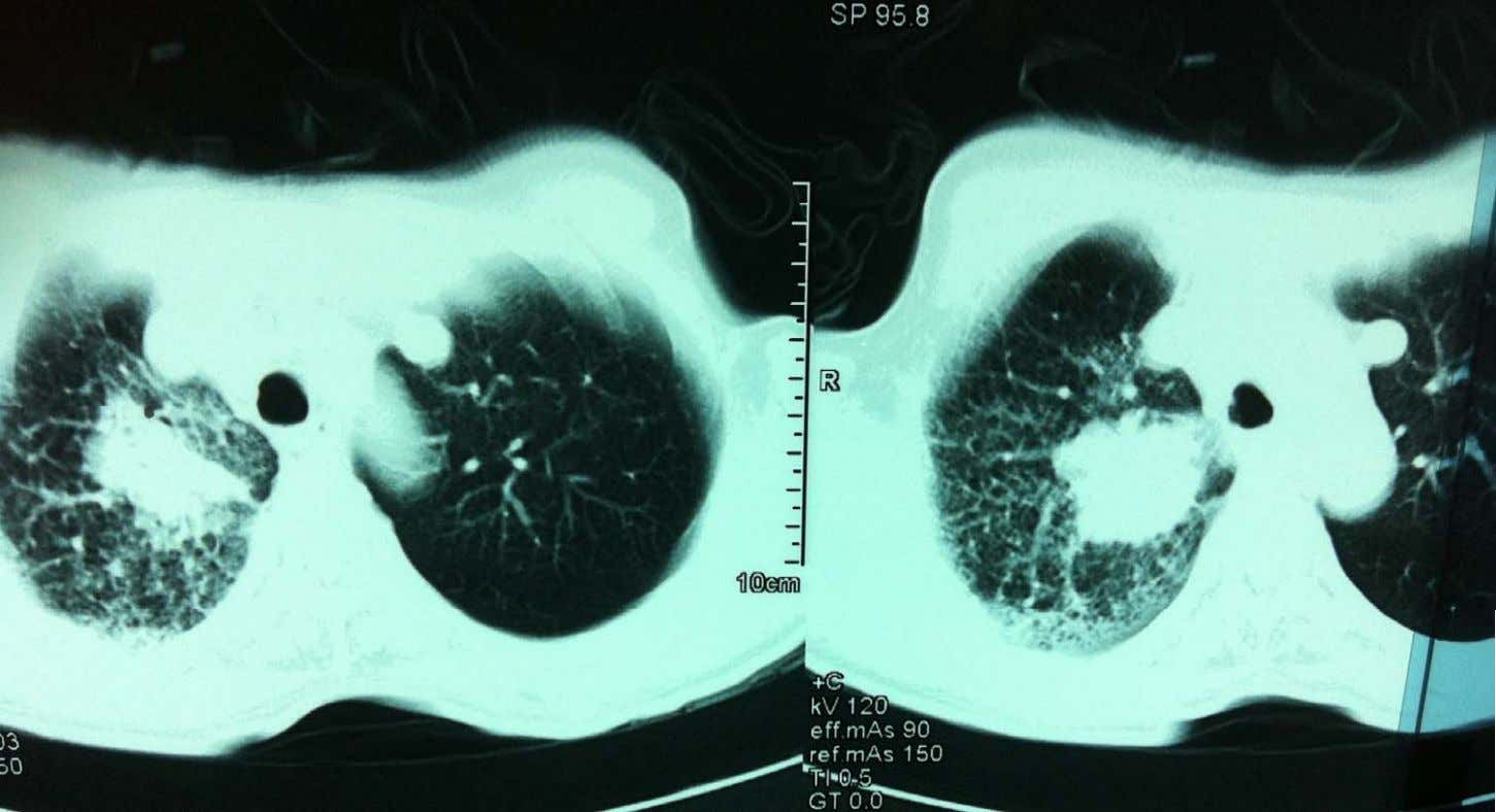 Right upper lobe mass with Lymphangitis carcinomatosa Bronchoscopy with Transbronchial lung biopsy: Adenocarcinoma