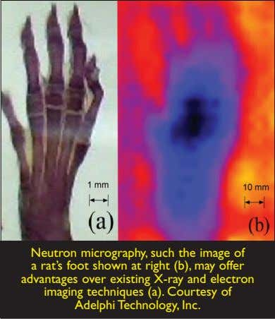 Neutron micrography, such the image of a rat's foot shown at right (b), may offer
