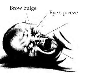 Brow bulge Eye squeeze