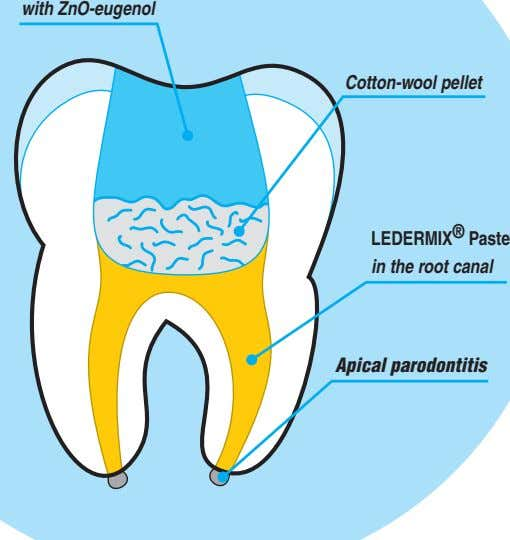 with ZnO-eugenol Cotton-wool pellet LEDERMIX ® Paste in the root canal Apical parodontitis