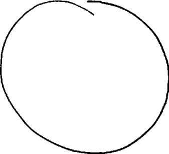 and will trace a circle similar to that shown below. Fig 13 Pattern showing aided eye