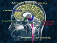 hypothalamus (in green), which controls feeding behavior. Slide 13: Short-Term Adverse Effects People who take Ecstasy