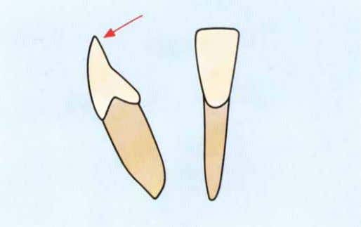 sup. de 12.5mm con un ligero desgaste del borde incisal. Fig 5-5. Perfil del incisivo inf.