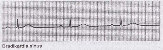 - Gelombang QRS :Normal (0,06-0,12detik) 3.Aritmia sinus - - Frekuensi (HR) - Gelombang P - Interval