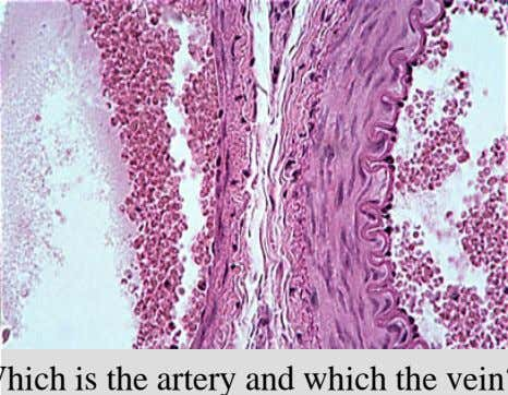 Comparison of Artery and Vein Which is the artery and which the vein? 26