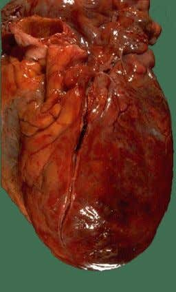 Coronary Thrombosis with Infarction The anterior surface of the heart demonstrates an opened left anterior descending