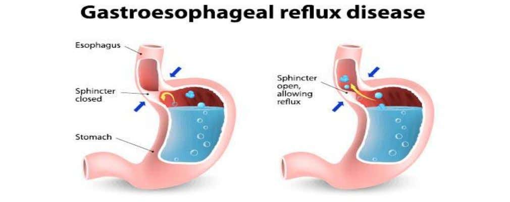 the esophagus causing mucosal damage. ◦ Is digestive disorder that affects the lower ◦ Often chronic
