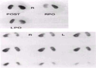 Normal 9 9 m Tc-DMSA images are shown in Fig. 2-4 . FIG. 2-4. Normal 9