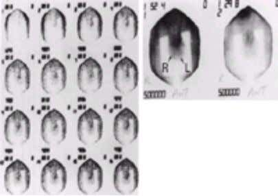 and does not have a prominent clinical role at this time. FIG. 2-14. Normal testicular scan.