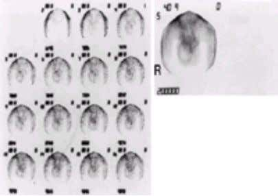 of Dr. Victor Lee, Boston Medical Center, Boston, MA.) FIG. 2-16. Delayed torsion. A photopenic (cold)