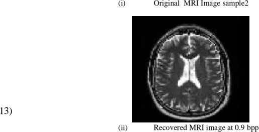 (i) Original MRI Image sample2 13) (ii) Recovered MRI image at 0.9 bpp