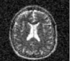 bpp are shown in table 1. (a) Original MRI image sample1 (c) Recovered image at 0.5