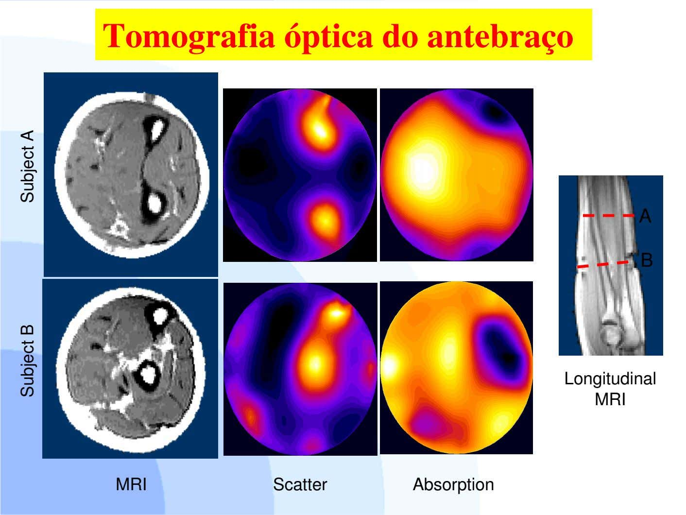 Tomografia óptica do antebraço A B Longitudinal MRI MRI Scatter Absorption Subject ASubject B
