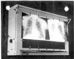 MODERN RADIOLOGY IN TURKEY: REFUGEES FROM NAZISM 1933-1945 Device produced by Walter Reininger in Istanbul which