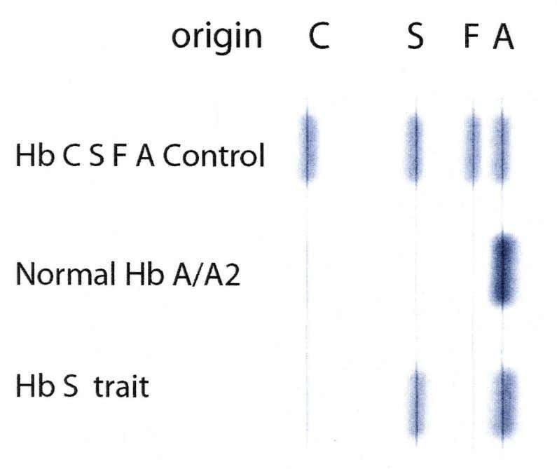 Fig 1. Computer simulated cellulose acetate electrophoresis of adult hemoglobins (pH 8.6) In Figure 1,
