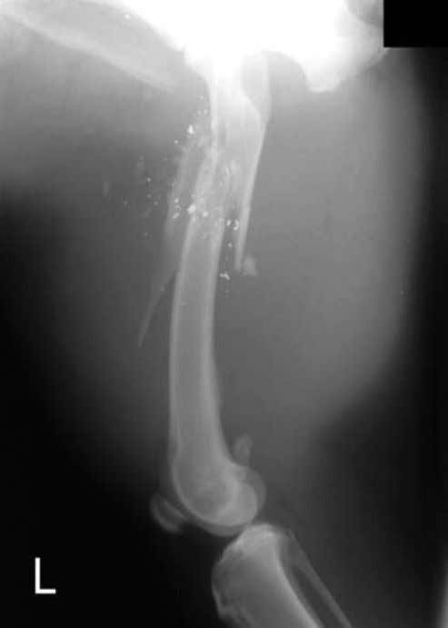 Comminuted Fracture Segmental Fracture