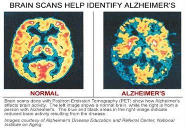 while a patient's memory and cognition are being tested. PET scans can determine brain activity and