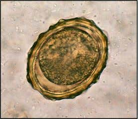 Normal fertile Ascaris lumbricoides ovum showing brownish coloured mamillated outer shell. Size : 55 –