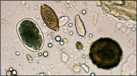 A combination photo to show the different egg sizes of Ascaris (right) Trichuris (middle) and