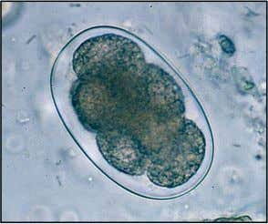 Hookworm sp. ovum has a thin wall and is usually seen in the 4 –
