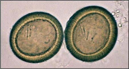Taenia sp. ova – the pork and beef tapeworm eggs are identical. Each has a