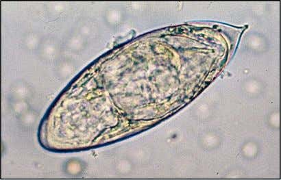 Schistosoma haematobium ovum, normally found in urine, but also in faeces. It has a thin