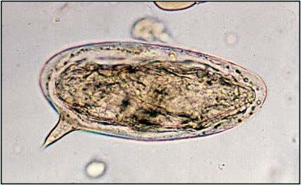 Schistosoma mansoni ovum has a thin transparent shell with a lateral spine and a miracidium