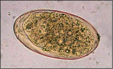 Fasciola hepatica ovum – very large with an operculum at one end. 63 – 90