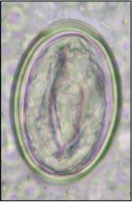 Three spirurid nematode ova: (left) Streptopharagus sp. found in rat faeces; (middle) Physaloptera caucasia from