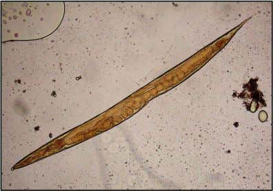 Strongyloides stercoralis – Free-living gravid female worm: ±1,2 mm x 65 µm (Archer and Appleton,
