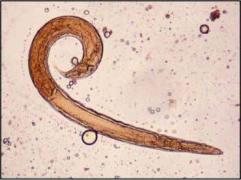 Strongyloides stercoralis - Free- living male worm: ±0,7 mm x 40 – 50 µm (Archer