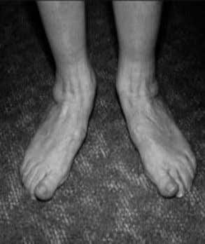 in one foot (unilaterally) or both feet (bilaterally). One of the more common signs of flatfoot