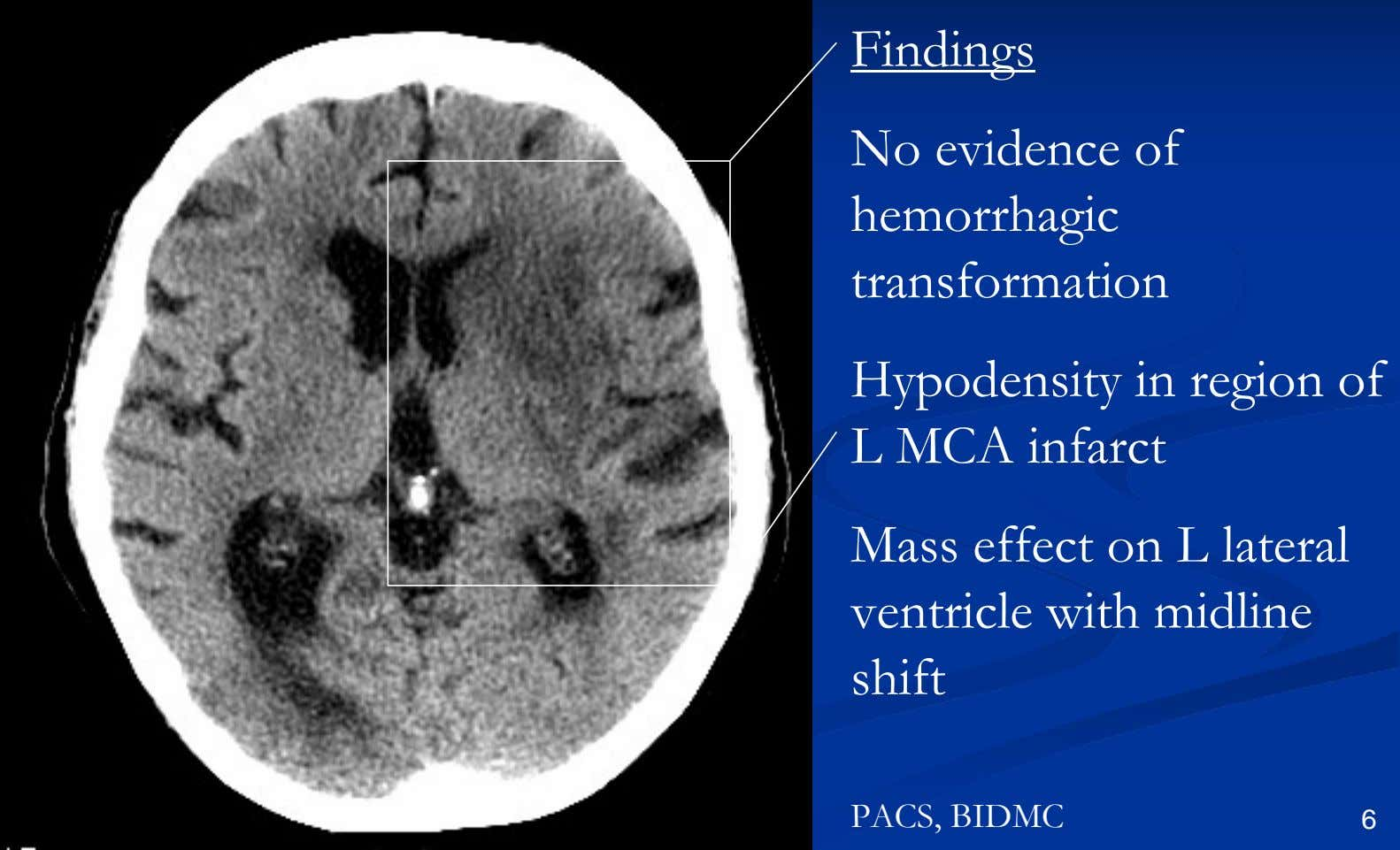 Findings No evidence of hemorrhagic transformation Hypodensity in region of L MCA infarct Mass effect