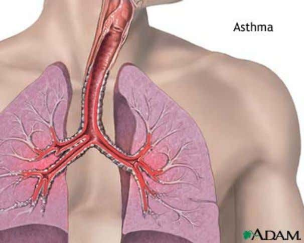 pathologischen Mechanismen einem Anfall zugrunde liegen. Asthma is a disease in which inflammation of the airways