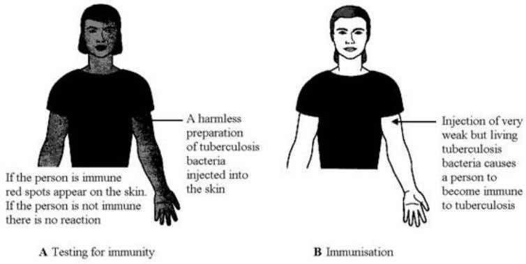 A person can be tested to find if they are immune. Use information in the diagrams