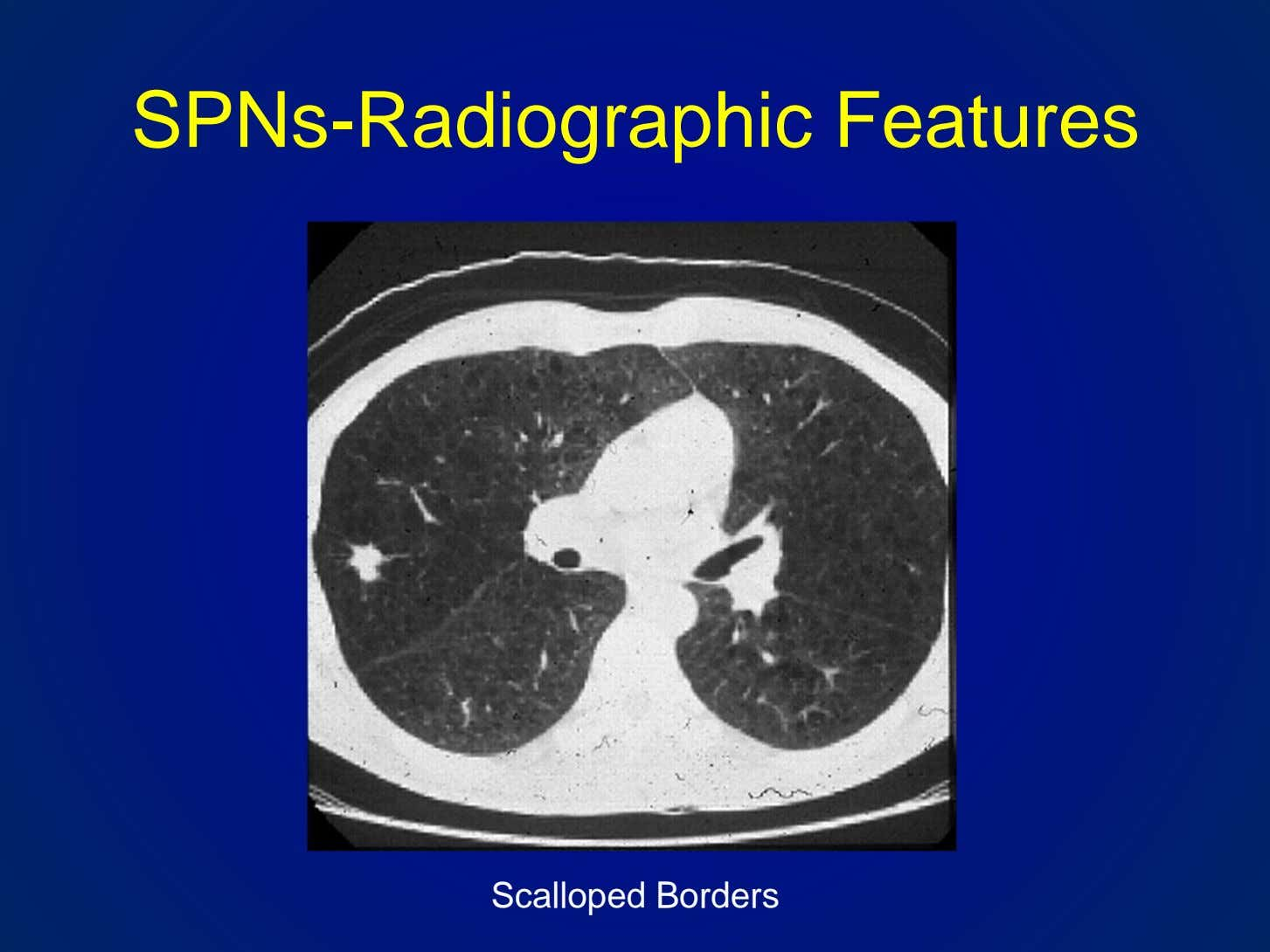 SPNs-Radiographic Features Scalloped Borders