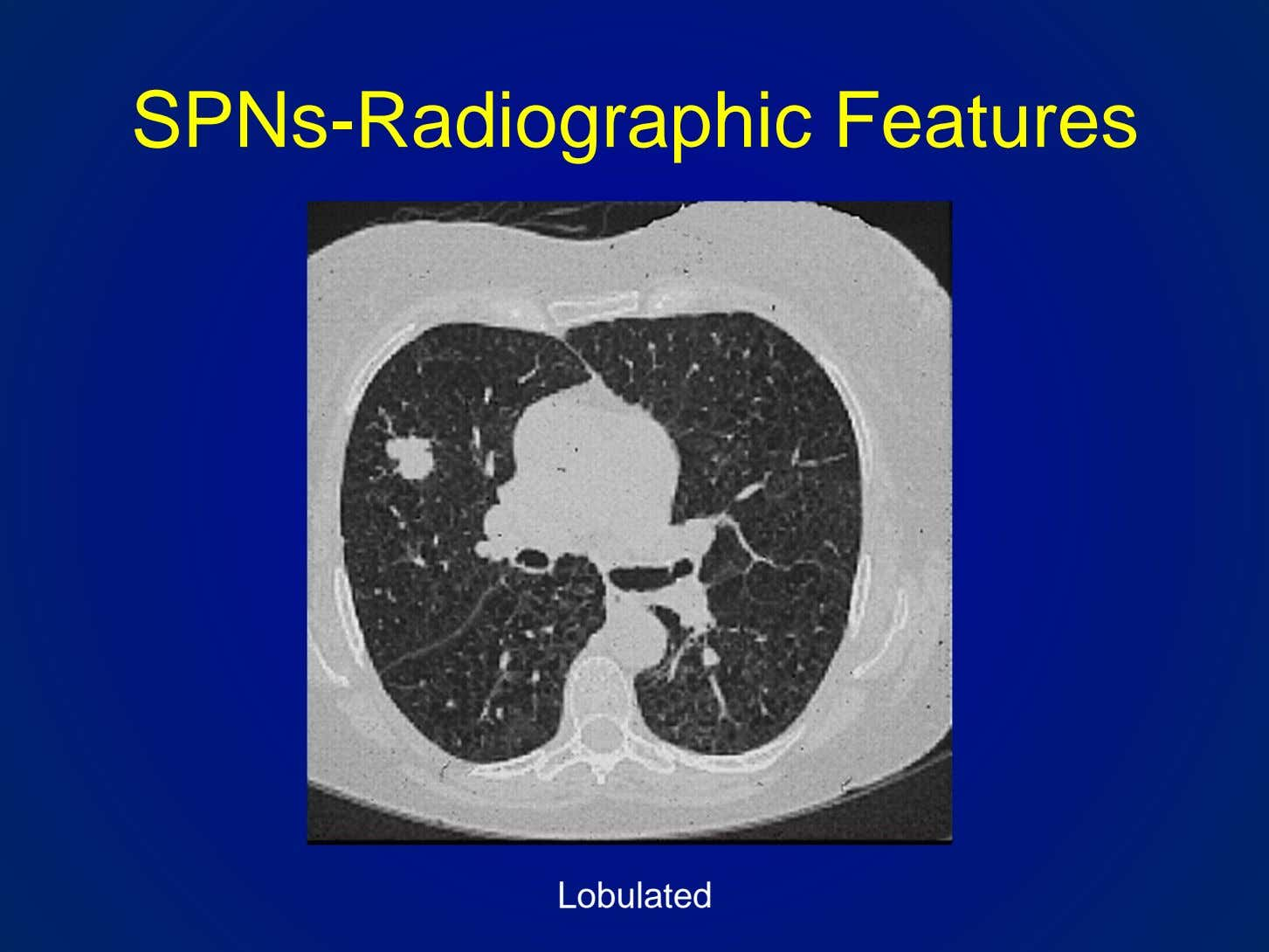 SPNs-Radiographic Features Lobulated