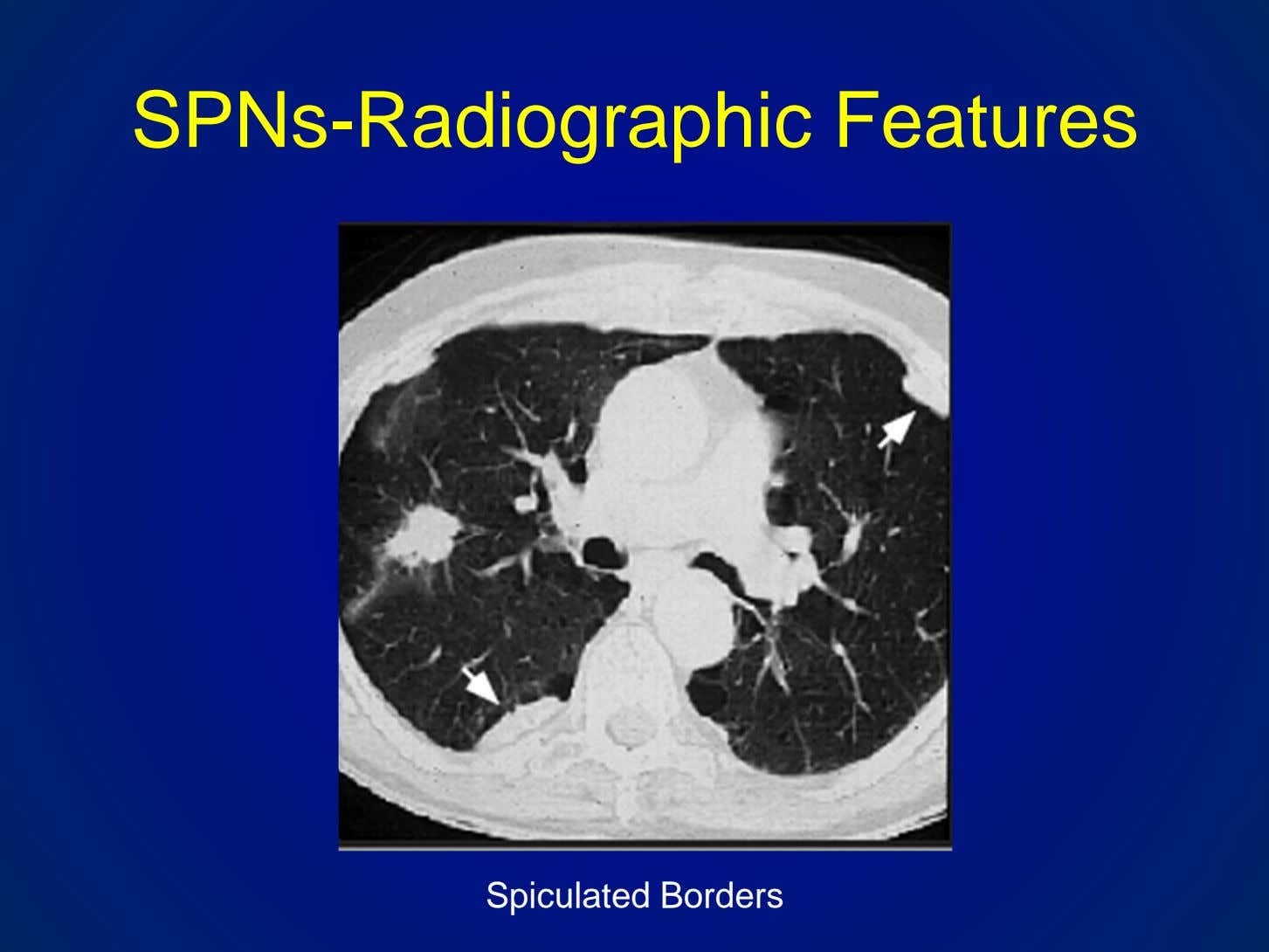 SPNs-Radiographic Features Spiculated Borders