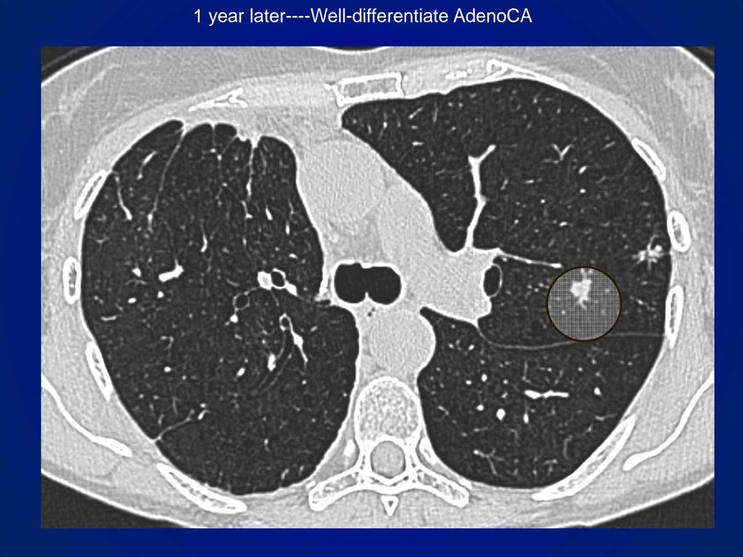 1 year later----Well-differentiate AdenoCA